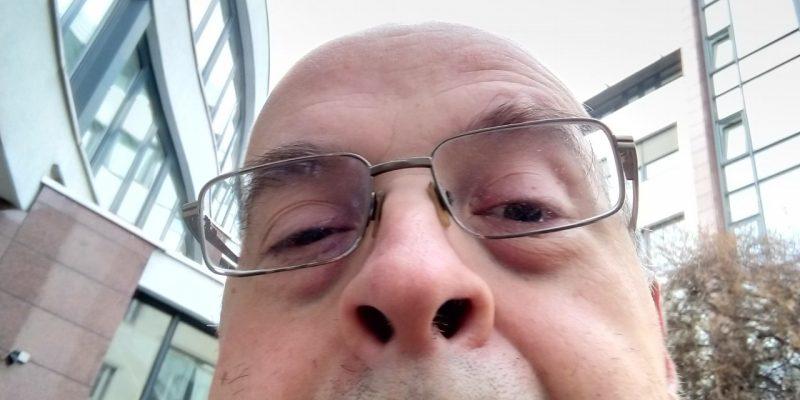 Der Lautwert-Blog-Autor mit frisch gebohrter Nase (Corona-Schnelltest)